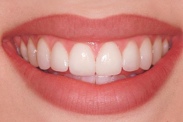 сколько стоит установка винира на 1 зуб