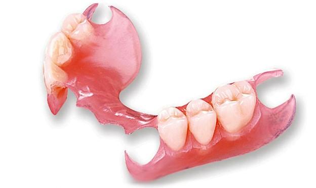 Нейлоновые зубные протезы казань цена